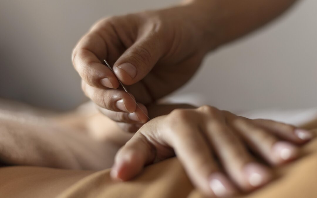 Modern Acupuncture | What Can Acupuncture Treat?