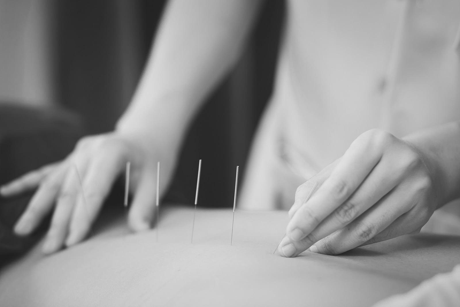 Acupuncture & Wellness Inc.